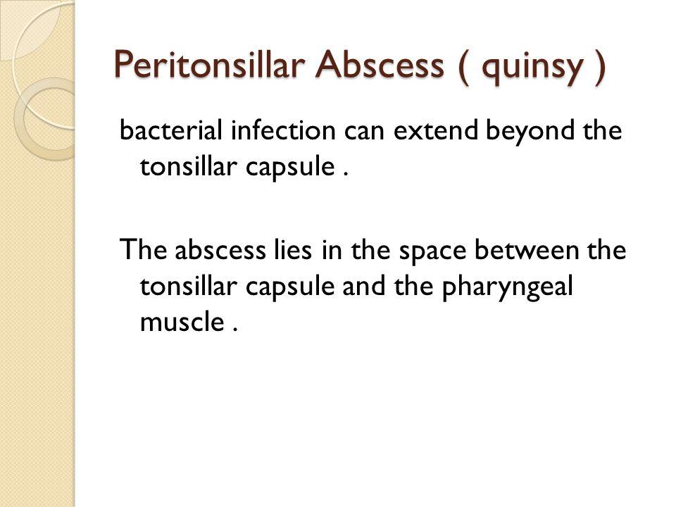Peritonsillar Abscess ( quinsy )