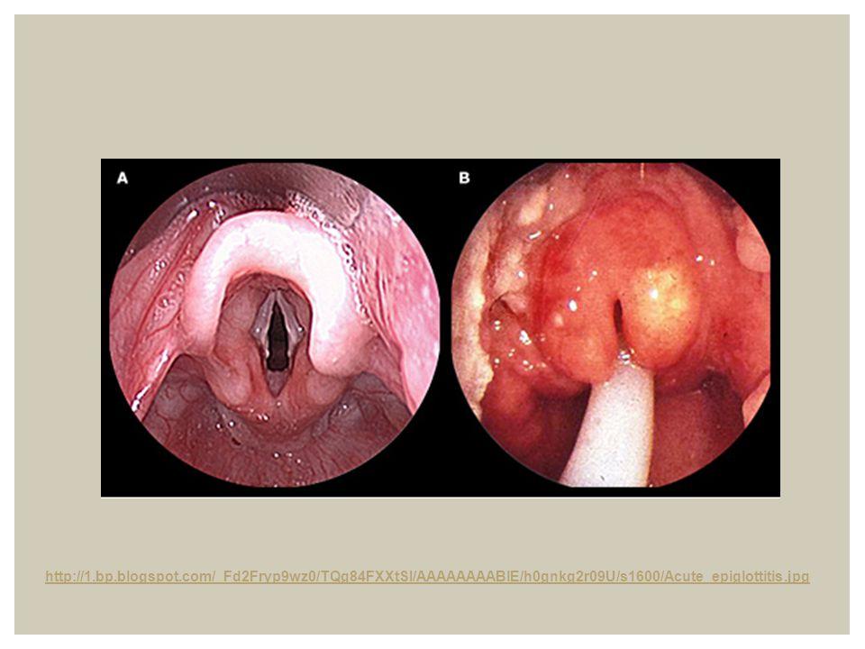 http://1.bp.blogspot.com/_Fd2Fryp9wz0/TQg84FXXtSI/AAAAAAAABlE/h0gnkg2r09U/s1600/Acute_epiglottitis.jpg
