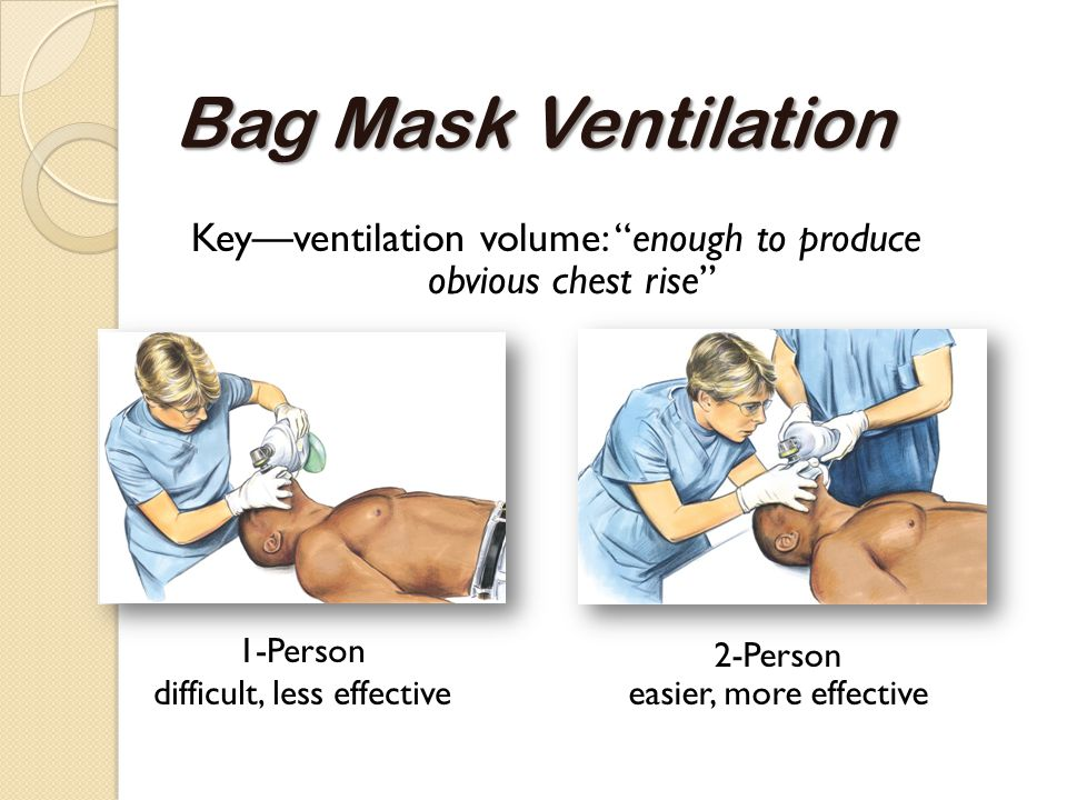 Bag Mask Ventilation Key—ventilation volume: enough to produce obvious chest rise 1-Person difficult, less effective.