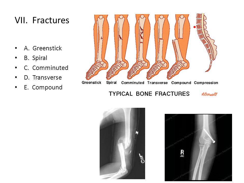 VII. Fractures A. Greenstick B. Spiral C. Comminuted D. Transverse