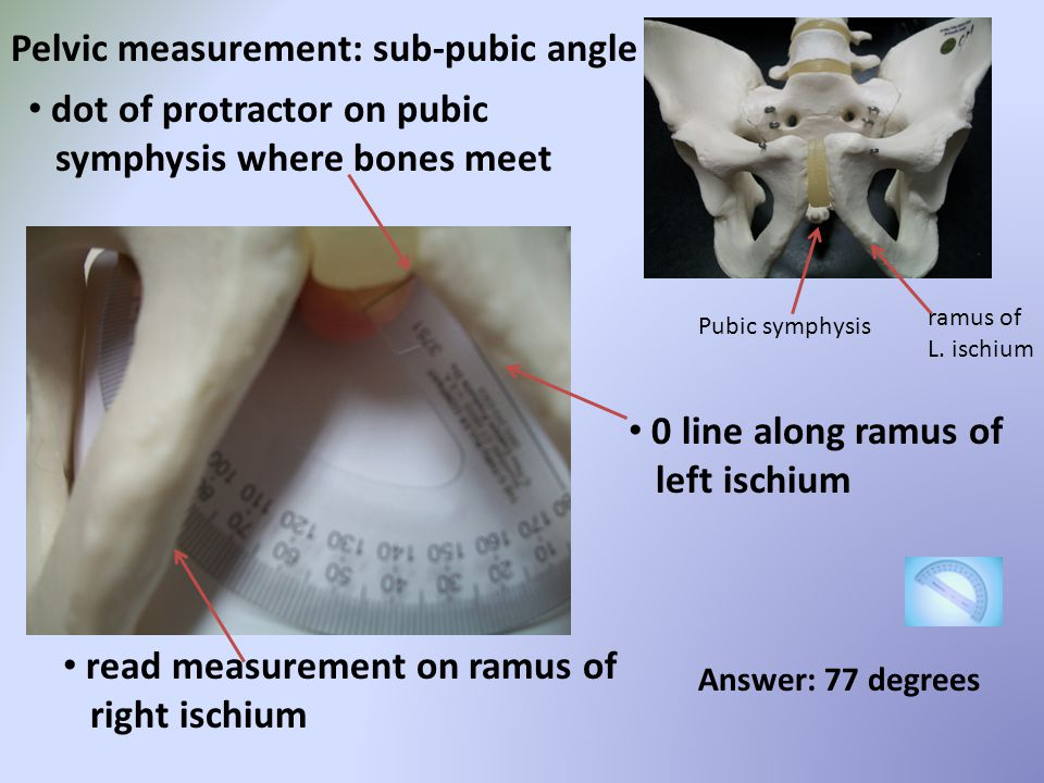 Pelvic measurement: sub-pubic angle
