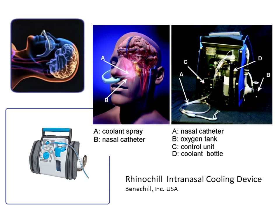 Rhinochill Intranasal Cooling Device