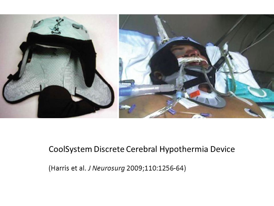 CoolSystem Discrete Cerebral Hypothermia Device