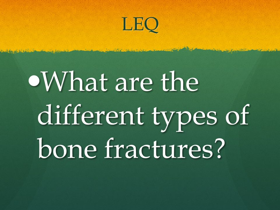 What are the different types of bone fractures