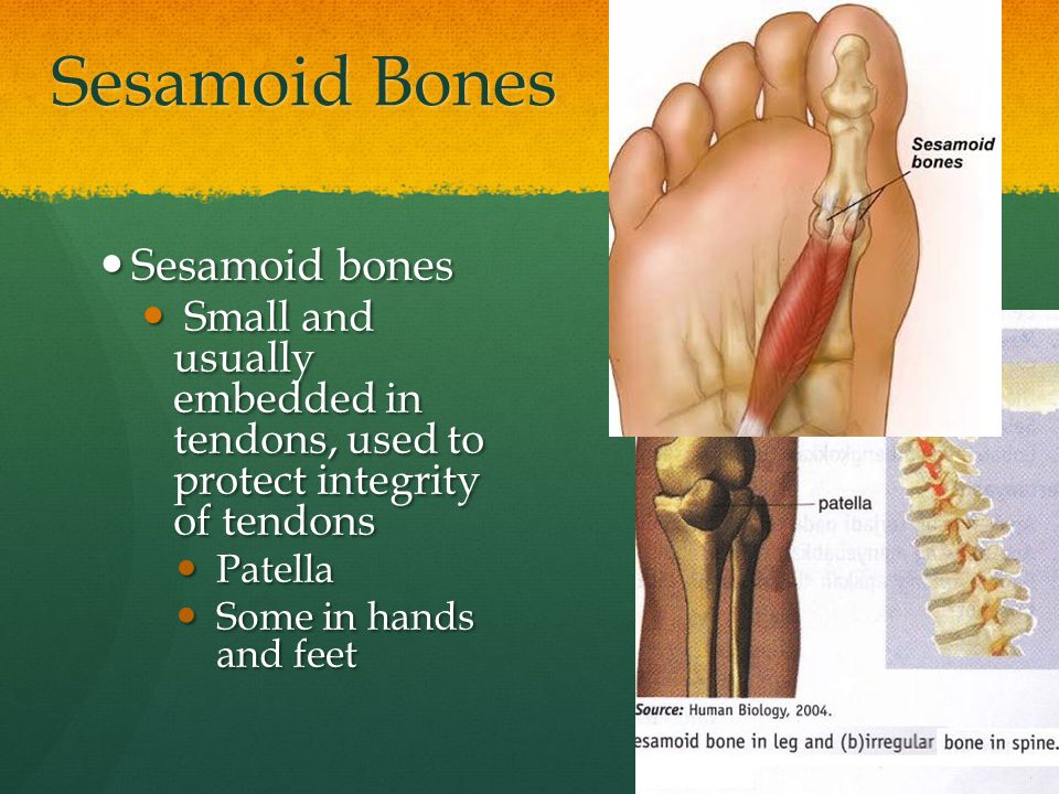 Sesamoid Bones Sesamoid bones