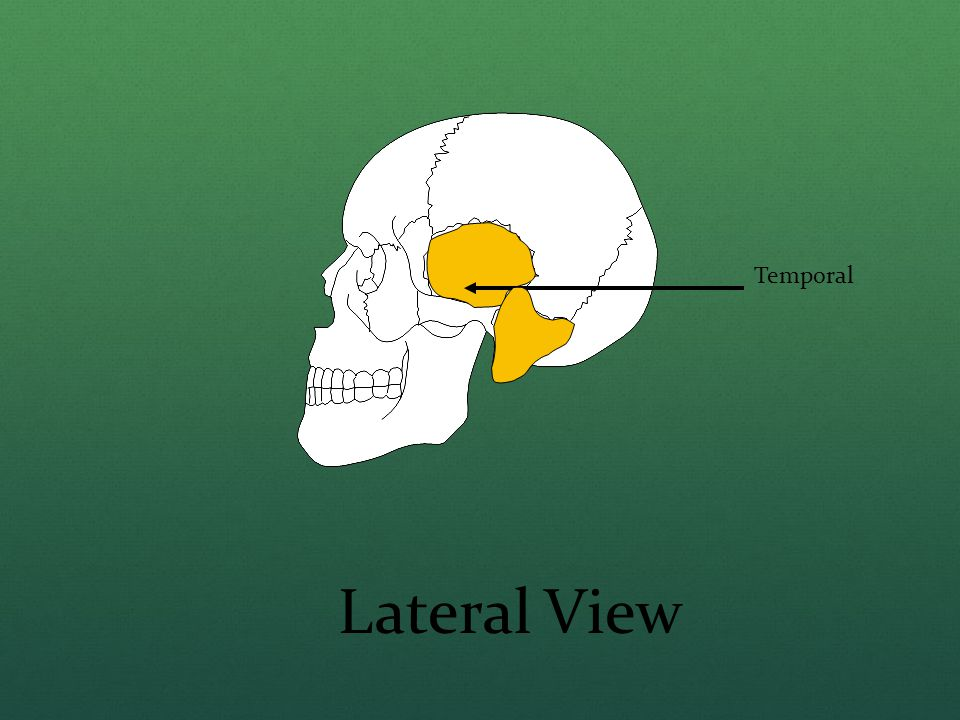 Temporal Lateral View