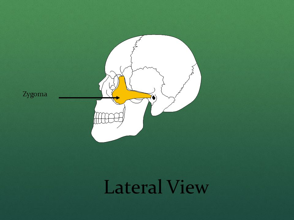 Zygoma Lateral View