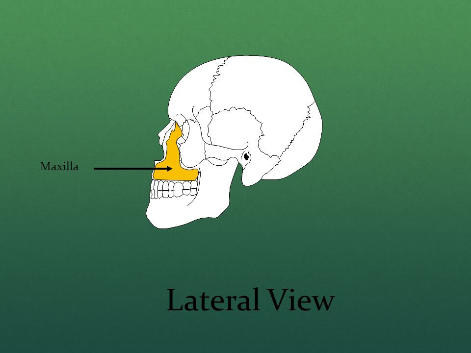Maxilla Lateral View