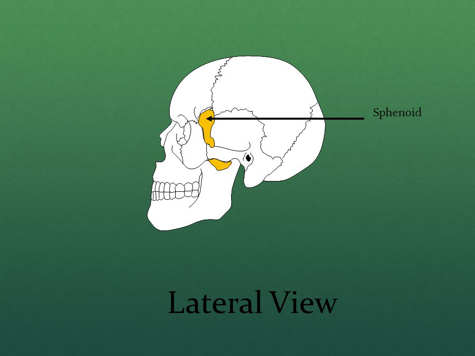 Sphenoid Lateral View