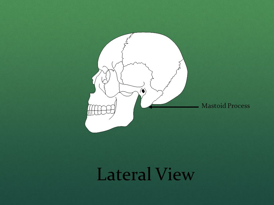 Mastoid Process Lateral View
