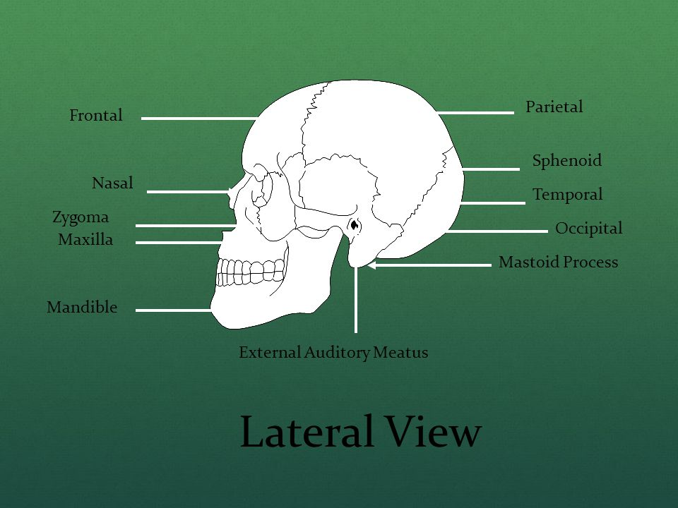 Lateral View Parietal Frontal Sphenoid Nasal Temporal Zygoma Occipital