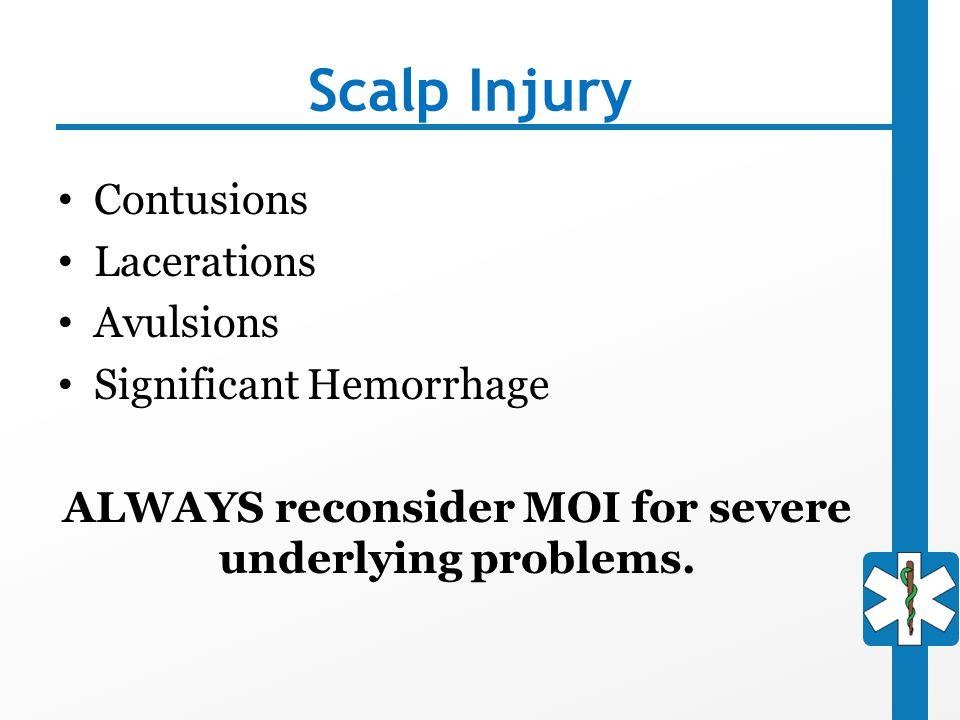 ALWAYS reconsider MOI for severe underlying problems.