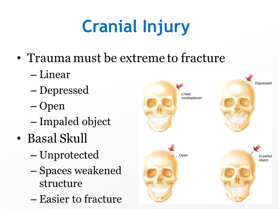 Cranial Injury Trauma must be extreme to fracture Basal Skull Linear