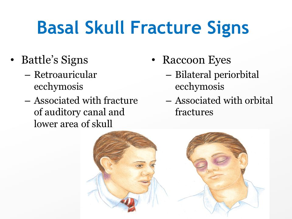 Basal Skull Fracture Signs