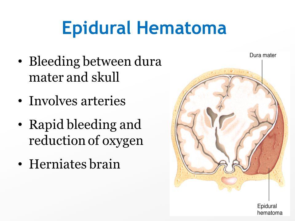 Epidural Hematoma Bleeding between dura mater and skull