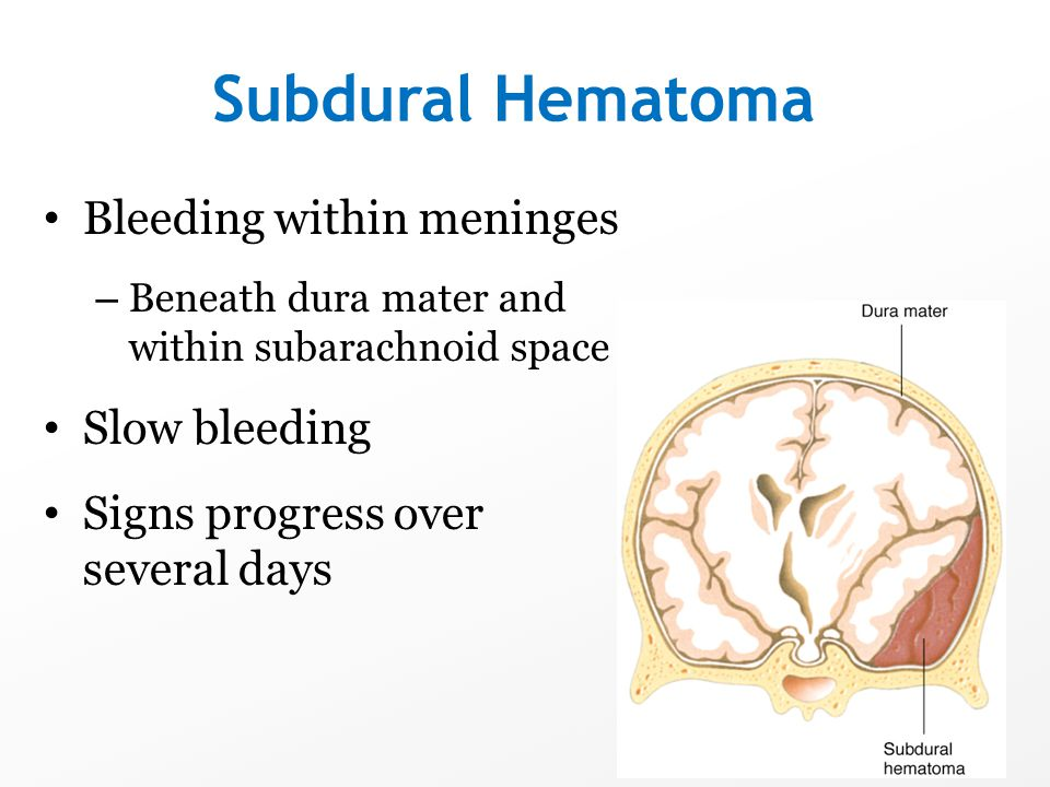 Subdural Hematoma Bleeding within meninges Slow bleeding