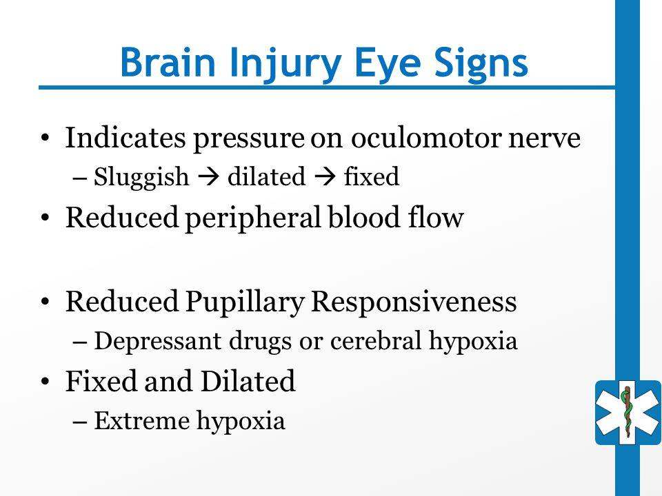 Brain Injury Eye Signs Indicates pressure on oculomotor nerve