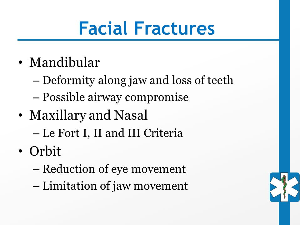 Facial Fractures Mandibular Maxillary and Nasal Orbit