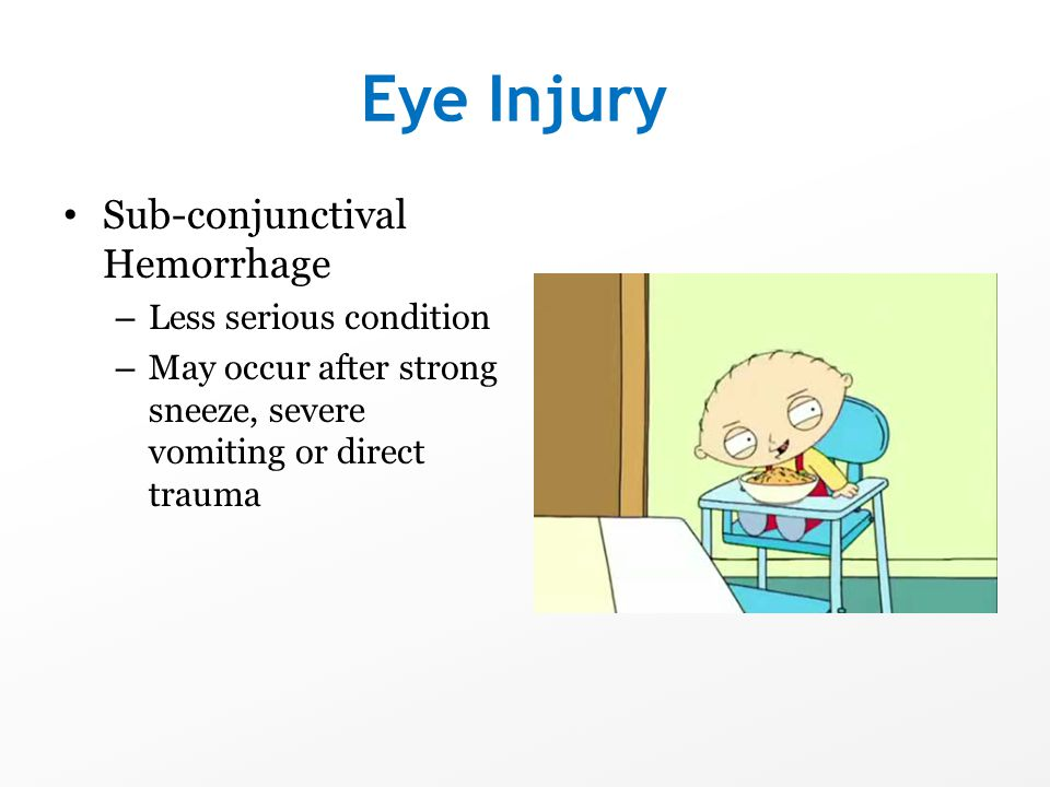 Eye Injury Sub-conjunctival Hemorrhage Less serious condition