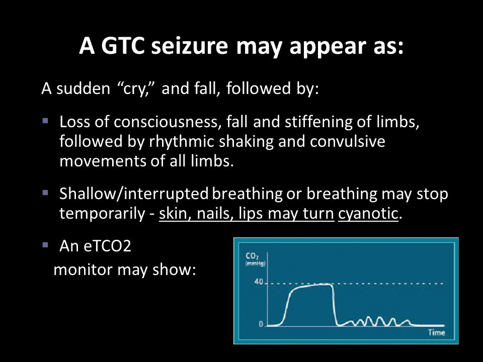 A GTC seizure may appear as: