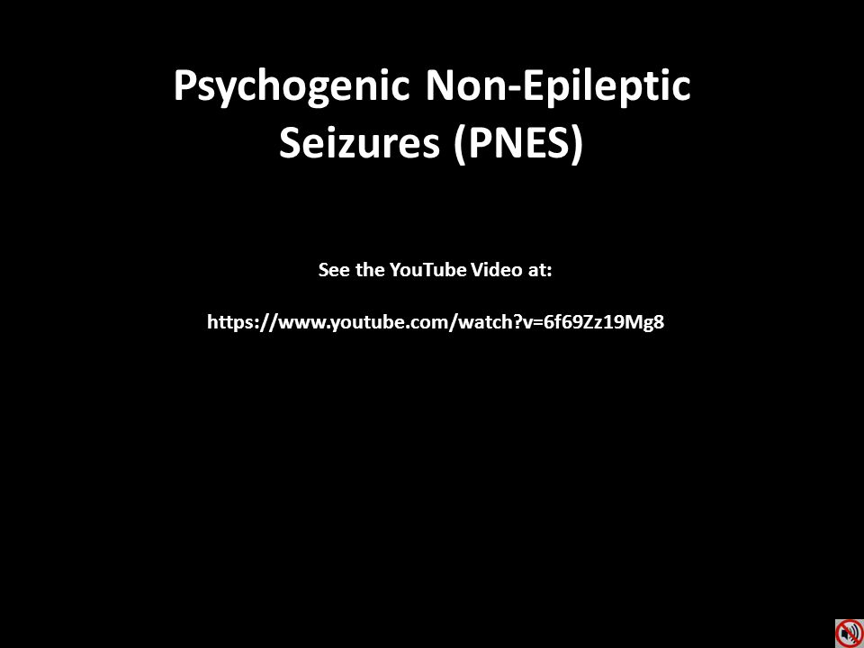Psychogenic Non-Epileptic See the YouTube Video at: