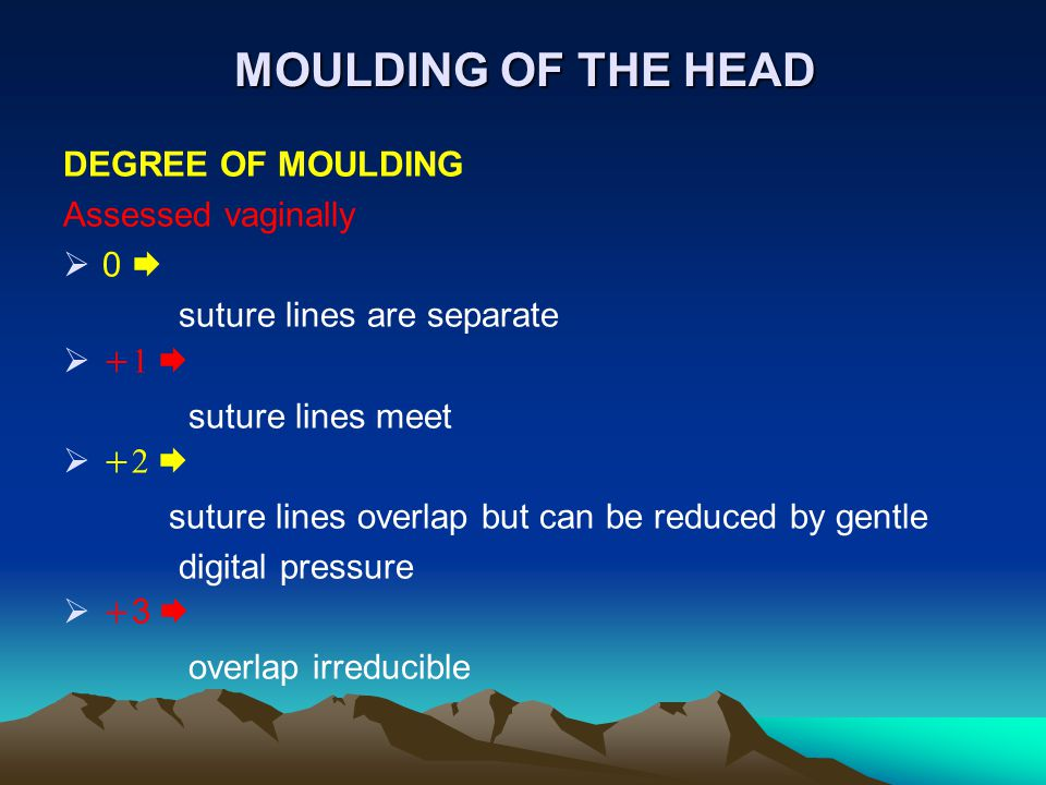 MOULDING OF THE HEAD DEGREE OF MOULDING Assessed vaginally 0 