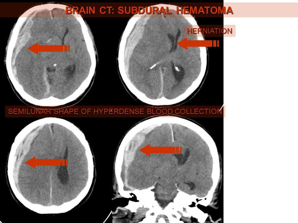 BRAIN CT: SUBDURAL HEMATOMA