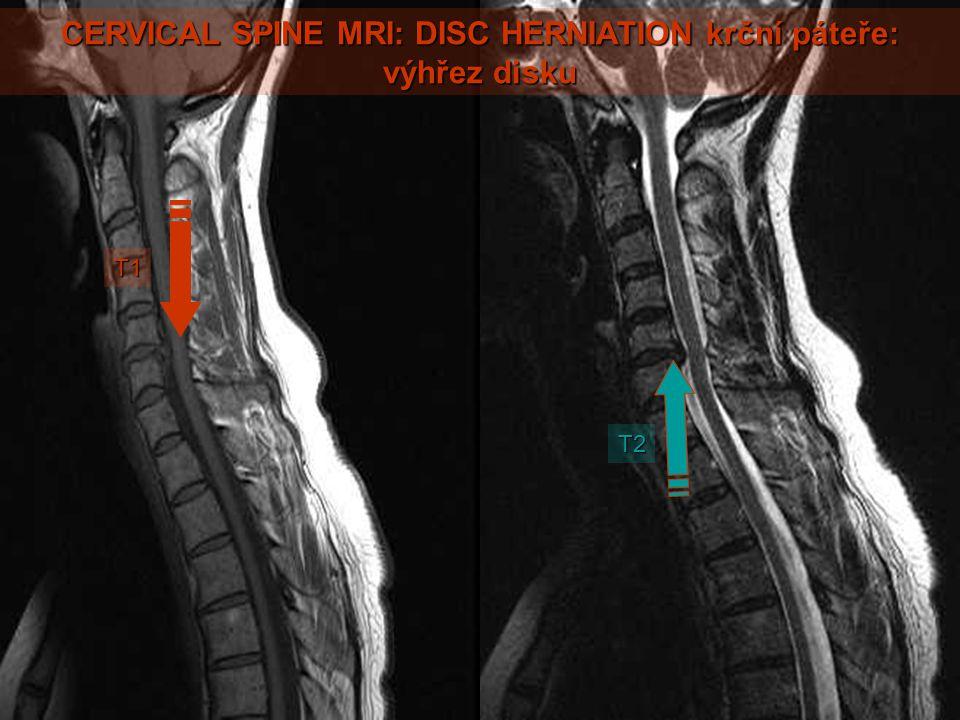 CERVICAL SPINE MRI: DISC HERNIATION krční páteře: výhřez disku