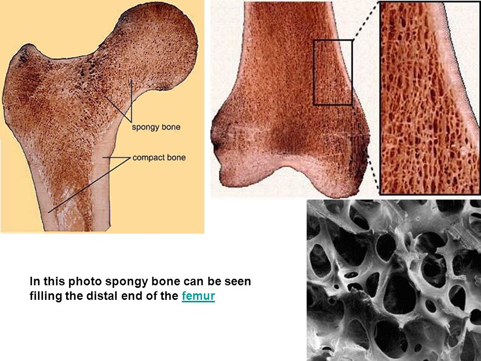 In this photo spongy bone can be seen filling the distal end of the femur
