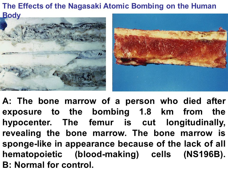 The Effects of the Nagasaki Atomic Bombing on the Human Body