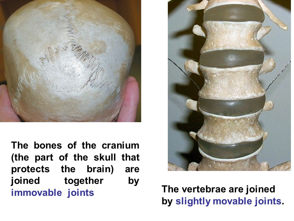 The bones of the cranium (the part of the skull that protects the brain) are joined together by immovable joints