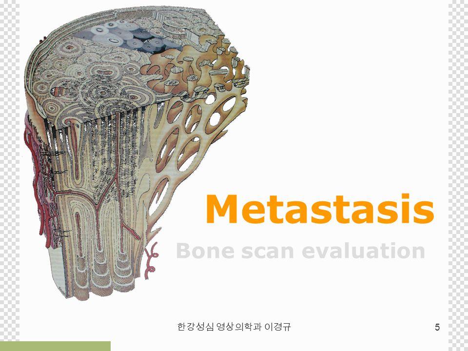Metastasis Bone scan evaluation