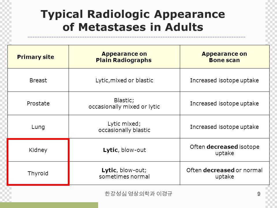 Appearance on Plain Radiographs Appearance on Bone scan