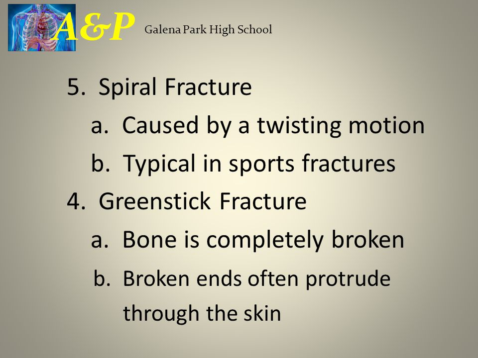 A&P 5. Spiral Fracture a. Caused by a twisting motion