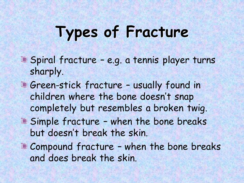 Types of Fracture Spiral fracture – e.g. a tennis player turns sharply.