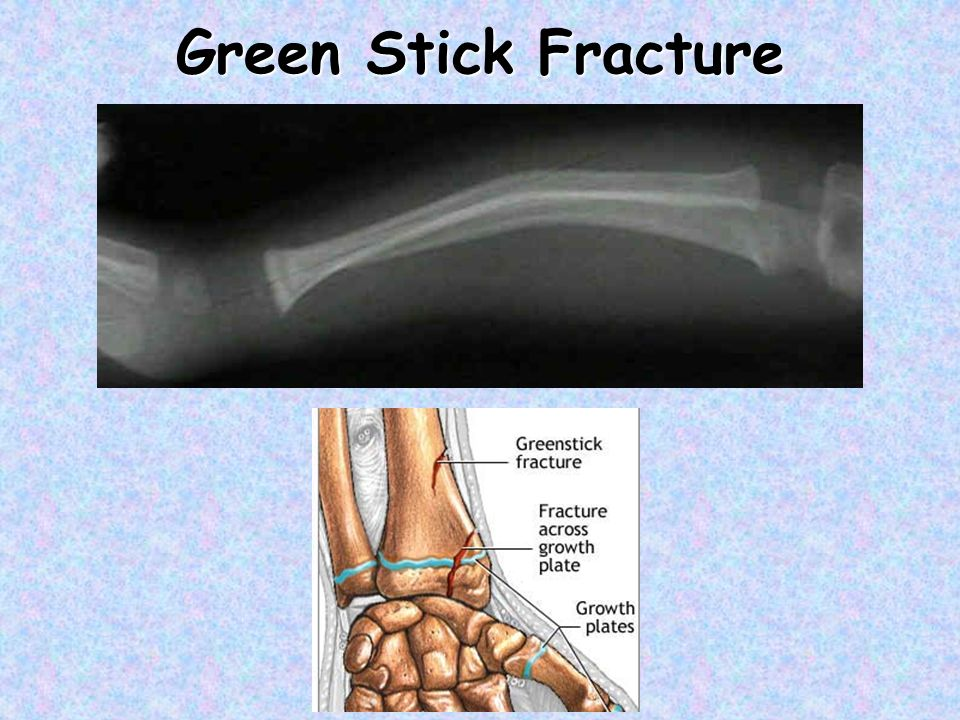 Green Stick Fracture