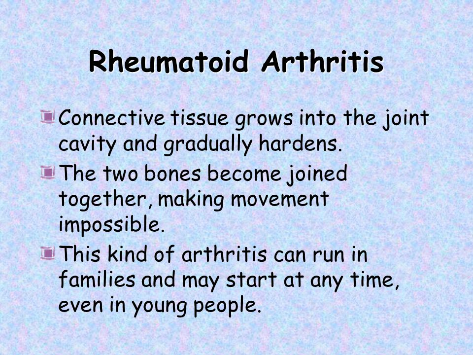 Rheumatoid Arthritis Connective tissue grows into the joint cavity and gradually hardens.