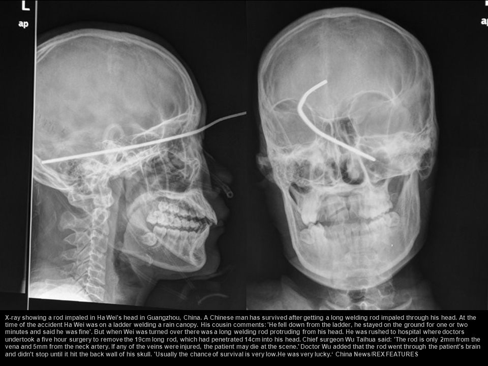 X-ray showing a rod impaled in Ha Wei s head in Guangzhou, China