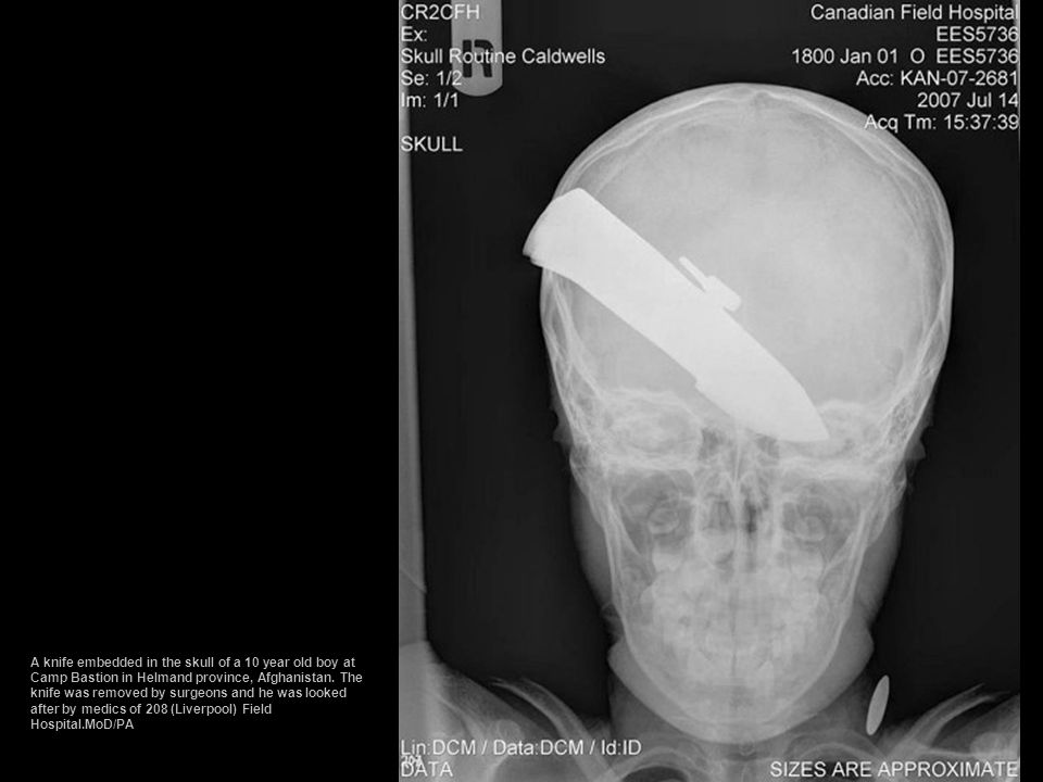 A knife embedded in the skull of a 10 year old boy at Camp Bastion in Helmand province, Afghanistan.