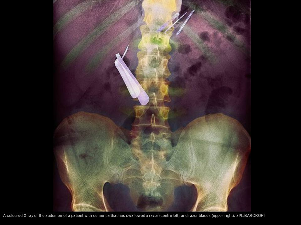 A coloured X-ray of the abdomen of a patient with dementia that has swallowed a razor (centre left) and razor blades (upper right).
