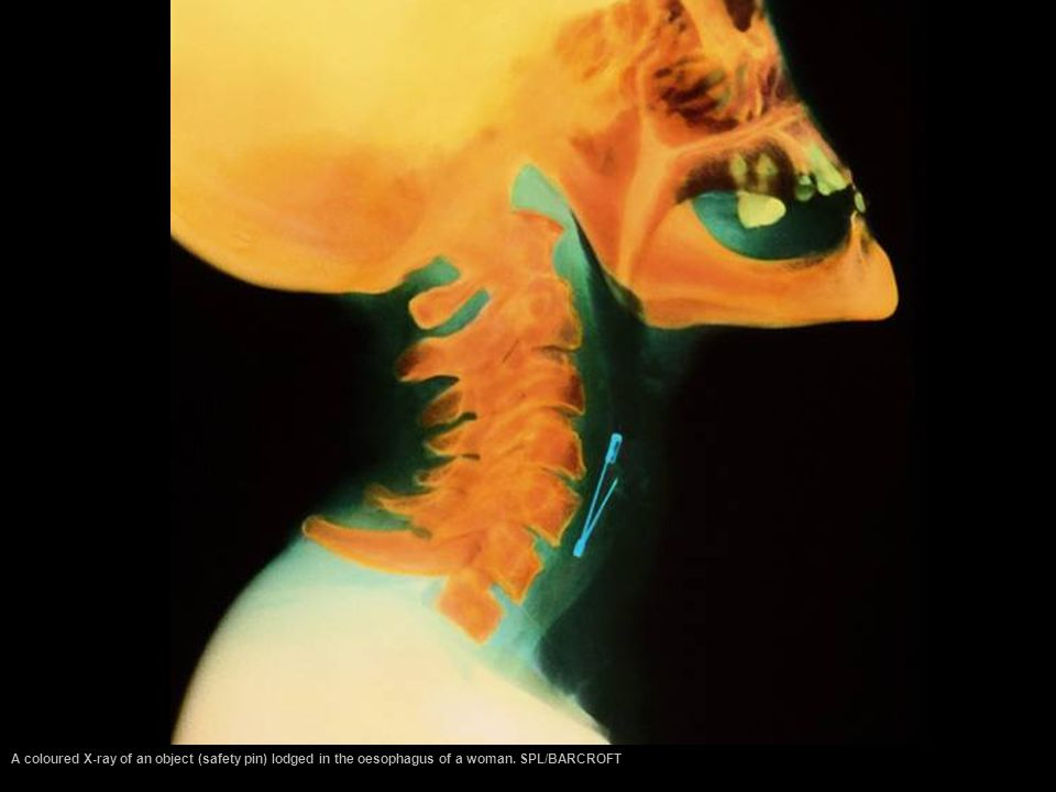 A coloured X-ray of an object (safety pin) lodged in the oesophagus of a woman. SPL/BARCROFT