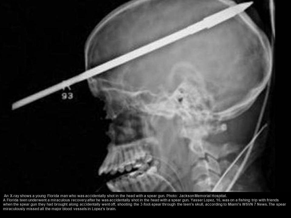 An X-ray shows a young Florida man who was accidentally shot in the head with a spear gun. Photo: Jackson Memorial Hospital.