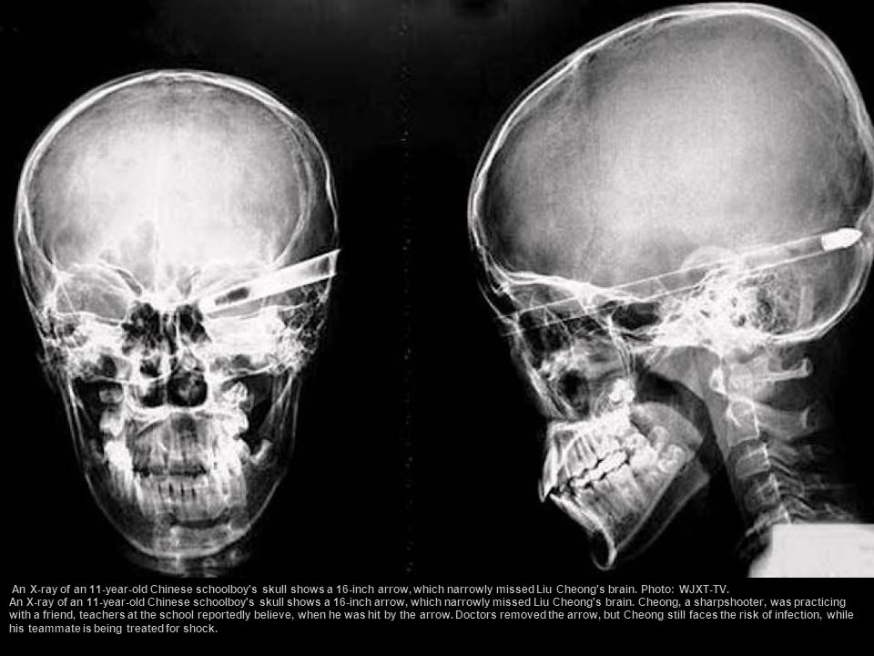 An X-ray of an 11-year-old Chinese schoolboy s skull shows a 16-inch arrow, which narrowly missed Liu Cheong s brain. Photo: WJXT-TV.