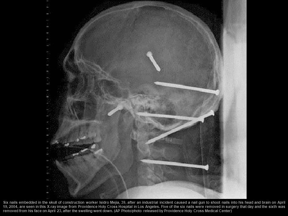 Six nails embedded in the skull of construction worker Isidro Mejia, 39, after an industrial incident caused a nail gun to shoot nails into his head and brain on April 19, 2004, are seen in this X-ray image from Providence Holy Cross Hospital in Los Angeles.