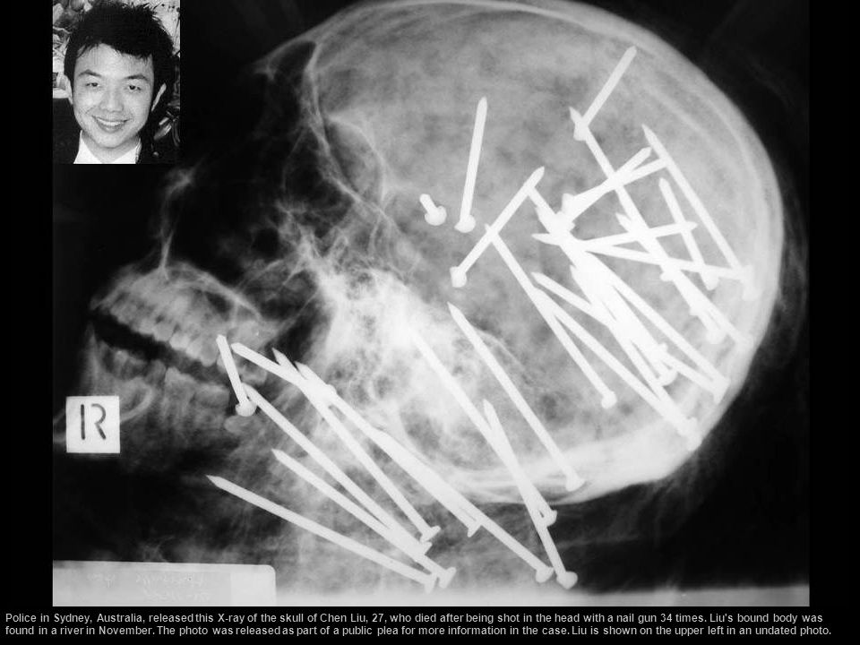 Police in Sydney, Australia, released this X-ray of the skull of Chen Liu, 27, who died after being shot in the head with a nail gun 34 times.