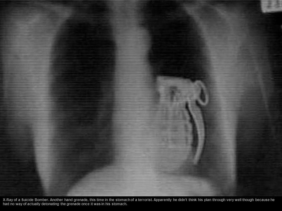 X-Ray of a Suicide Bomber