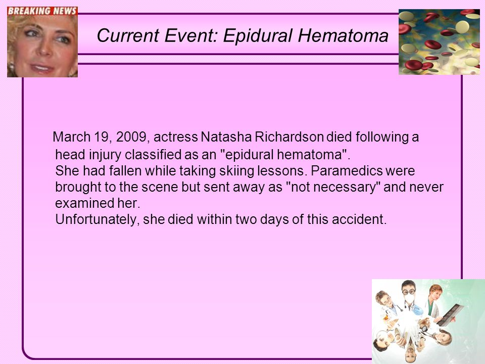 Current Event: Epidural Hematoma