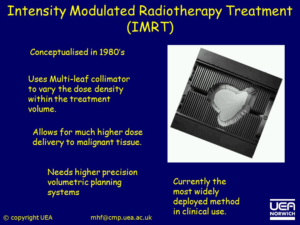 Intensity Modulated Radiotherapy Treatment (IMRT)
