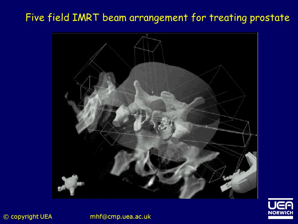 Five field IMRT beam arrangement for treating prostate
