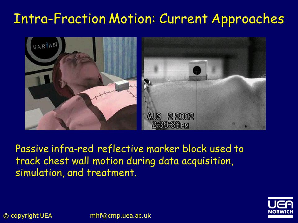 Intra-Fraction Motion: Current Approaches